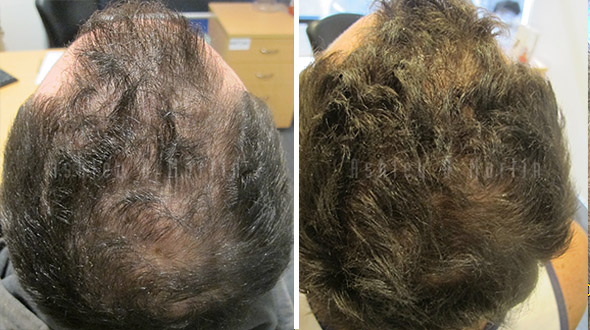 beforeandafterscorporate-3-march-2016